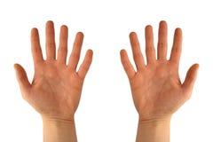 Mãos com seis dedos Foto de Stock