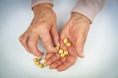 Mãos da artrite reumatoide Imagem de Stock Royalty Free