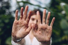 Mãos da mulher após o trabalho e ajardinar do jardim Imagem de Stock