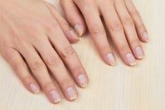 Mãos da mulher após ter removido o gel fotos de stock royalty free