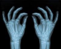 Mãos delicadas Imagens de Stock