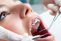 Mãos do dentista que trabalham em cintas dentais