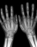 Mãos do raio X Imagens de Stock Royalty Free