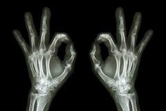 Mãos do raio X com sinal APROVADO Fotos de Stock Royalty Free