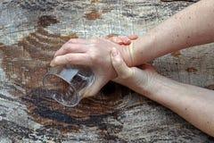 Mãos fortemente do tremor de uma mulher mais idosa fotos de stock royalty free