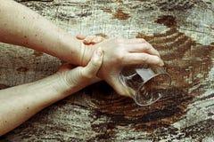 Mãos fortemente do tremor de uma mulher mais idosa imagem de stock