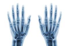 Mãos humanas normais da mostra do AP da mão do raio X do filme no fundo branco & x28; isolado & x29; Foto de Stock Royalty Free