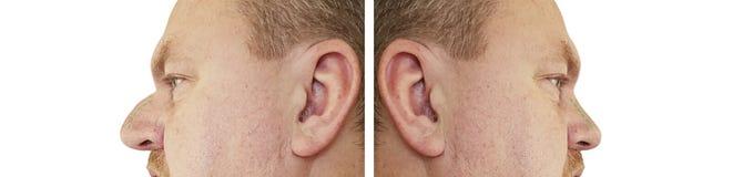 Mężczyzny nosa garb przed i po procedurami porównuje odbudowa kolaż fotografia stock