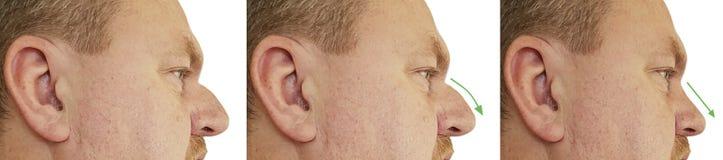 Mężczyzny nosa garb przed i po procedury pojęciem porównuje odbudowa kolaż zdjęcie stock