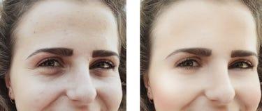 Mädchen knittert Augen vorher nach Verfahrenstaschenkorrektur lizenzfreie stockfotos