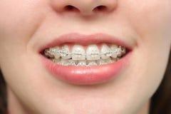 Mädchen lächelt mit Klammern Lizenzfreie Stockfotos