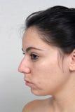 Mädchen mit Akne (2) Stockfoto