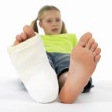 Mädchen mit einem gebrochenen Fahrwerkbein Lizenzfreies Stockfoto