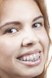 Mädchen mit Klammern Stockbilder