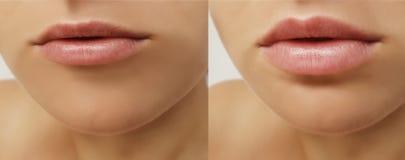 Mädchenlippen, Spritzeneinspritzung, Lippenvermehrungskorrektur vor und nach Verfahren stockbild