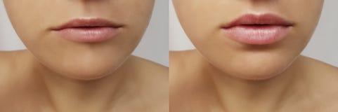 Mädchenlippen, Spritzeneinspritzung, Lippenvermehrungskorrektur vor und nach Verfahrenskollagen s lizenzfreies stockfoto