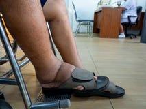 Män med sockersjuka och njursjukdom med att svälla fot Kan inte bära skor han var i en rullstol i sjukhuset för en strid t Arkivfoto