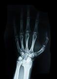 Människa för Carpalben X Ray fotografering för bildbyråer