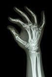 Människas hand och reko symbol Arkivbilder