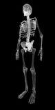 Människokropp skelett Arkivfoto