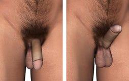 Männliche Genitalien-Illustrations-Penis-Aufrichtung Stockfotografie