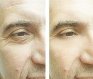 Männliche Gesichtsfalten vorher nach Korrektur lizenzfreies stockfoto