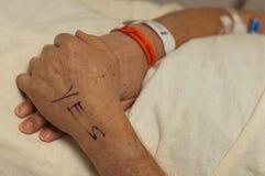 Männliche Hand markiert für Handoperation. Stockbilder