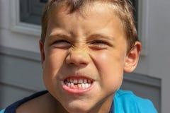 Männliche Jugend verliert seinen ersten Zahn Stockbilder