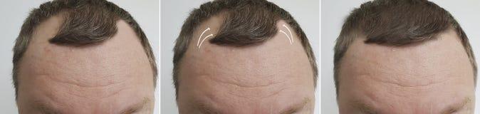 Männliche Kahlheit vor und nach Behandlungsversetzung stockfoto