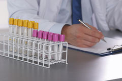 Männlicher Doktor schreiben auf den Schreibtisch mit Reagenzglas Stockfotos