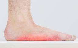 Männliches Bein mit stark ausgeprägten flachen Füßen Stockbilder