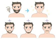 Mäns skönhet - skägg - före och efter stock illustrationer