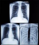 mänsklig bildstråle för bröstkorg x Arkivfoton