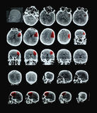 Mänsklig hjärna CT royaltyfria foton