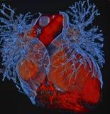 Mänsklig hjärta, beräknad Tomography, CT, radiologi Royaltyfri Foto