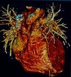 Mänsklig hjärta, beräknad Tomography, CT, radiologi Royaltyfri Bild