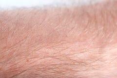 mänsklig hud Royaltyfria Foton