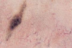 Mänsklig hud med hematomaen Arkivbilder