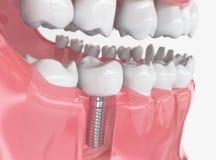 Mänsklig implantat för tand - tolkning 3d fotografering för bildbyråer