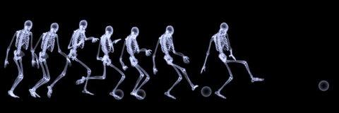 mänsklig leka skelett- fotbollröntgenstråle fotografering för bildbyråer