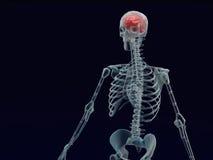 Mänsklig röd stråle för hjärna X i svart bakgrund Royaltyfri Bild