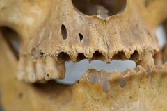 mänsklig skalle Fotografering för Bildbyråer