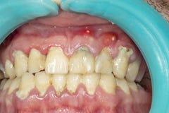Mänsklig tandcloseup med tand- platta och inflammation av gingien arkivfoton