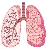 mänskliga lungs Arkivbild