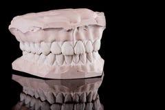 mänskliga model tänder royaltyfri bild