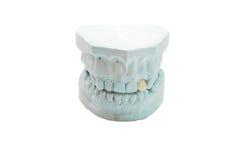 mänskliga model tänder för gypsum royaltyfria foton