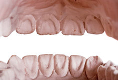 mänskliga tänder royaltyfria bilder