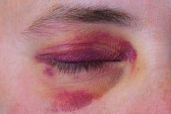 Mänskligt öga med ett purpurfärgat blåmärke royaltyfri foto