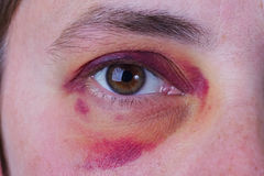 Mänskligt öga med ett stort blåmärke royaltyfria foton