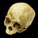 Mänskligt skallebrott (den bästa den mongoloida, sidan, toppen) (, asiat) Royaltyfri Fotografi
